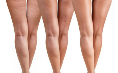 Cellulite Buster Course